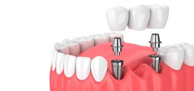 implantes-gabriela-claure