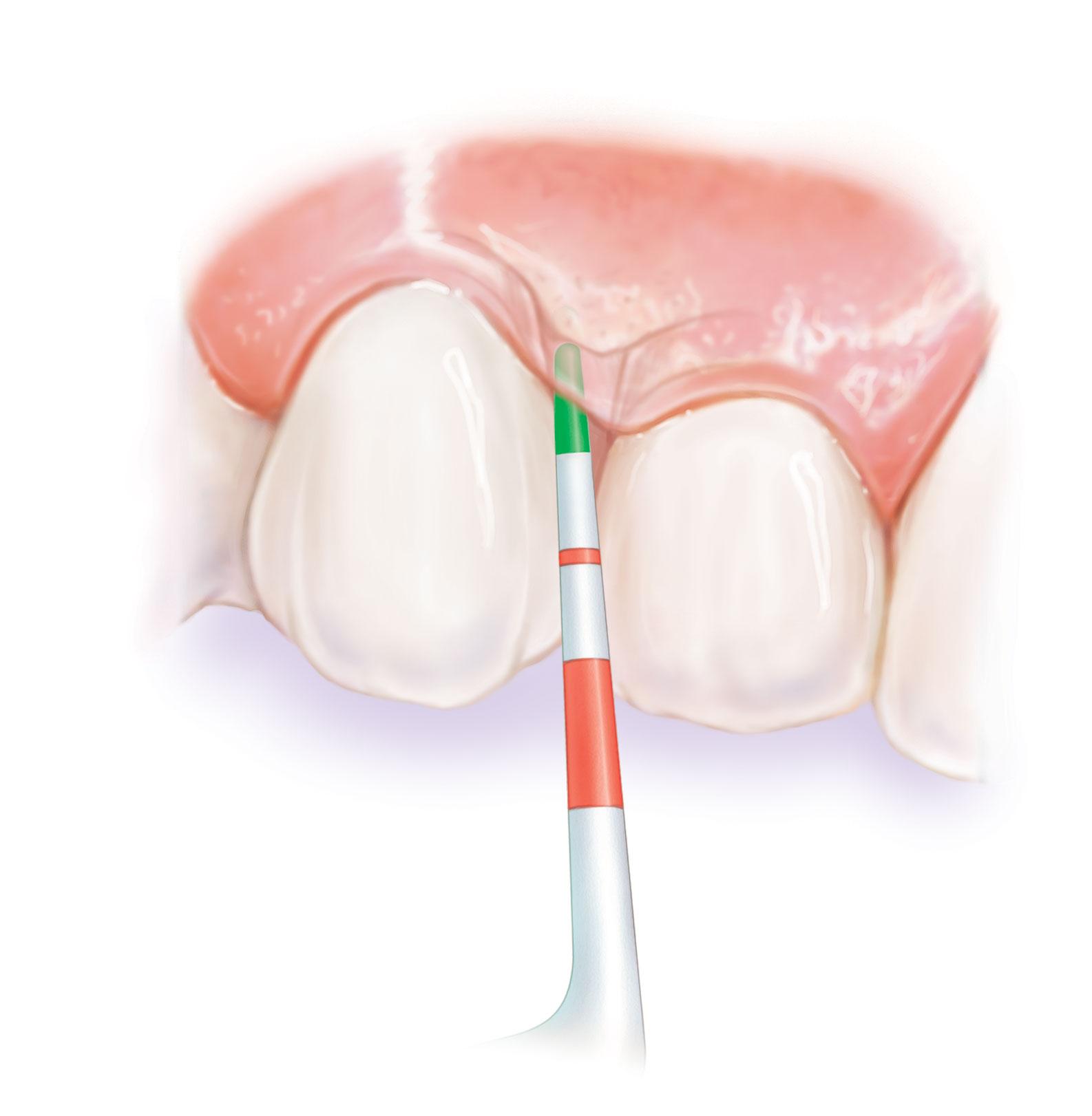 periodoncia-gabriela-claure
